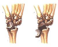 КОСТИ. Вывих полулунной кости. Переломы костей - фото