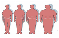 ОЖИРЕНИЕ - Лечение ожирения