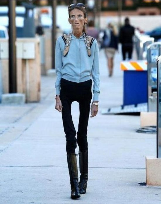Фото самых худых в мире людей