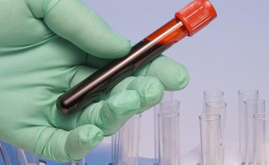 Диета по группе крови 3. Таблица продуктов