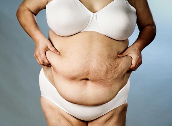 Как лечить ожирение 2 степени у женщин
