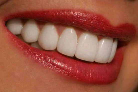 Полоски отбеливающие для зубов
