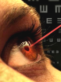 ЗРЕНИЕ - Лазерная коррекция зрения