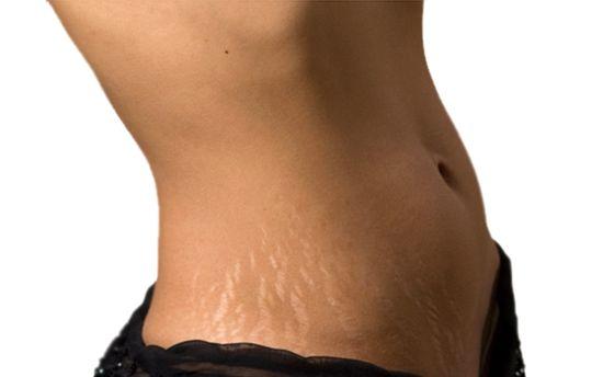 Как избавиться от растяжек в домашних условиях после похудения