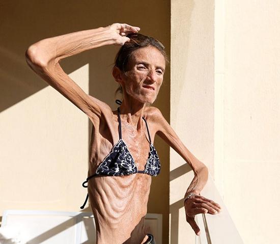 Симптомы анорексии: сброшу еще пару килограммов – и все!