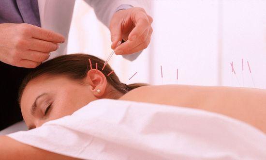 Что за процедура – иглоукалывание