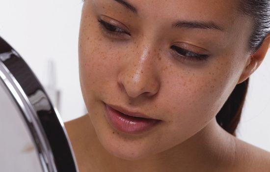Проблемная кожа: особенности и уход