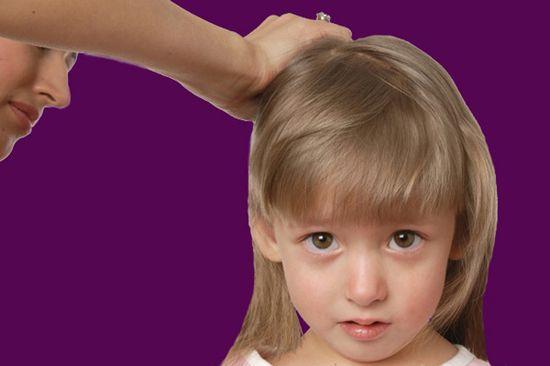 Педикулез у деток