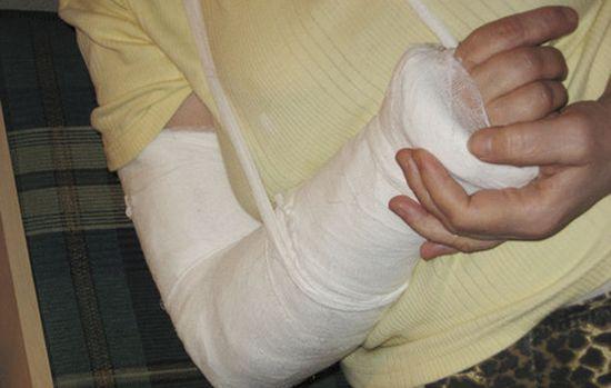 Перелом рук